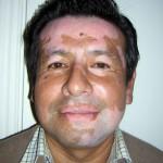 Paciente antes de ser tratado de Vitíligo con manchas en la cara