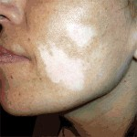 Cara con manchas de Vitíligo antes del tratamiento