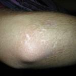 Resultado en el codo derecho después del tratamiento para Vitíligo