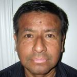 Gesicht Vitiligo Carlos 5 Monate Behandlung