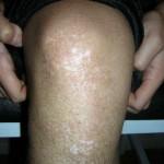 Vitiligo Schauspielerin Knie rechts  6 Monate nach Behandlungsbeginn