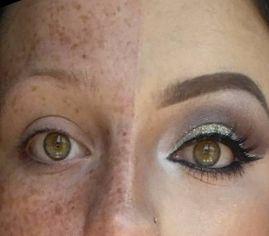 Maquillaje para Vitíligo